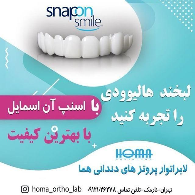 لابراتوار پروتزهای دندانی هما، لبخند هالیودی را تجربه کنید